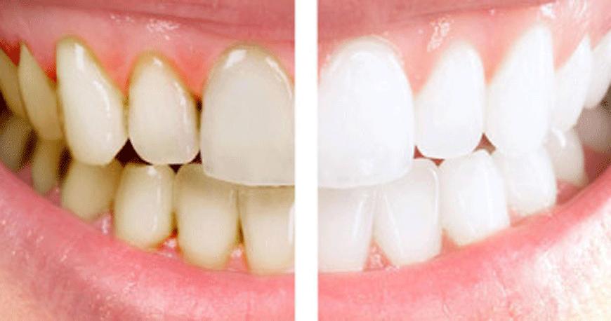 Terapia Parodontale